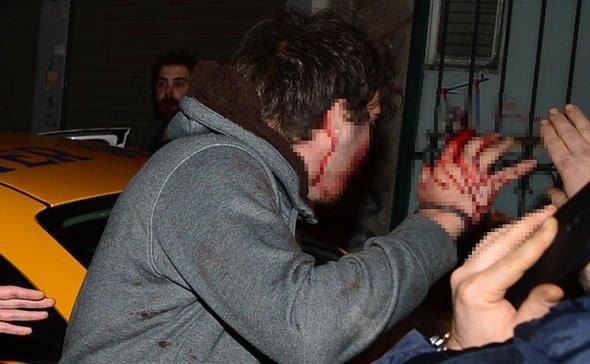 'Fenerbahçeli efsanenin oğluna saldırı! Kanlar içinde kaldı