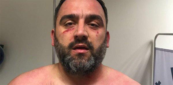 Beşiktaşlı idareci Erdinç Gültekin'e neden saldırdılar?