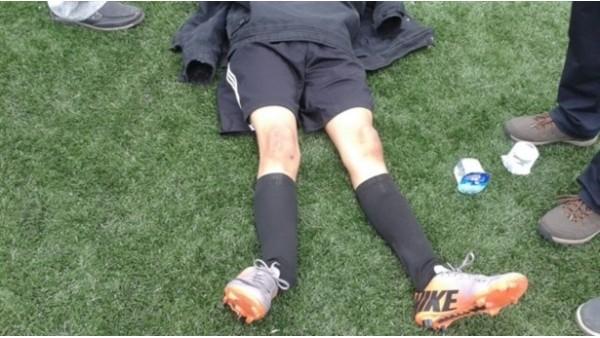 Ayak bileği kırıldı, 40 dakika ambulans bekledi!