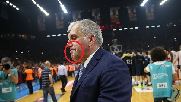 Obradovic'in yüzüne ayran isabet etti