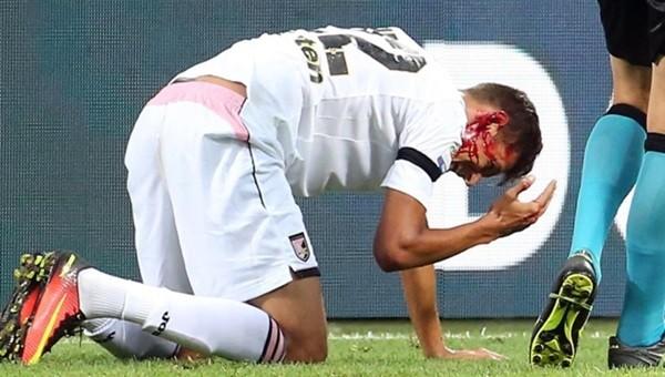 Inter maçında kanlar içinde yerde kaldı