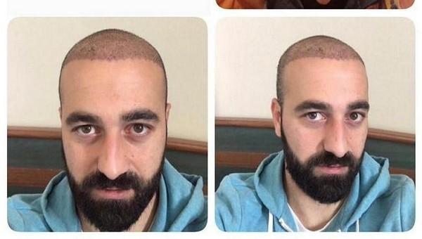 Fahri Tatan saç ektirdi, takımdan kovuldu