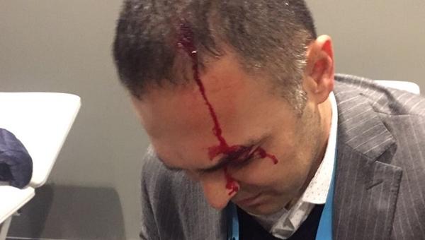 Hasan Çetinkaya, Vodafone Arena'da kanlar içinde kaldı