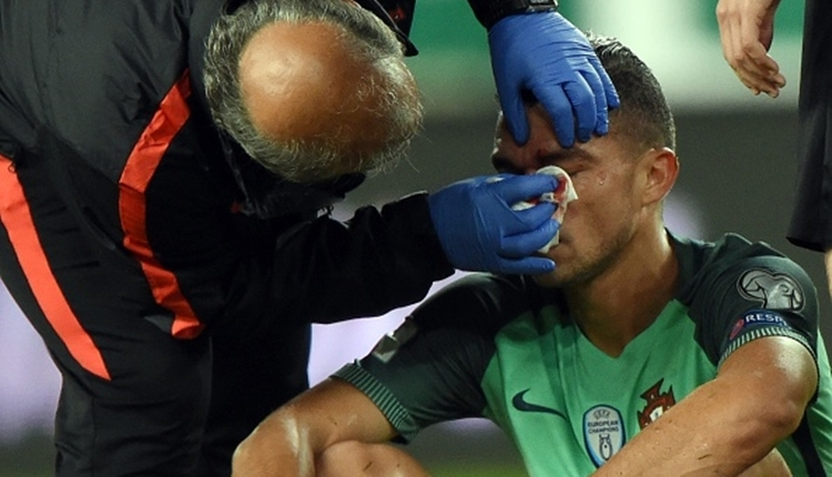 Beşiktaşlı Pepe'ye Macaristan - Portekiz maçında dirsek