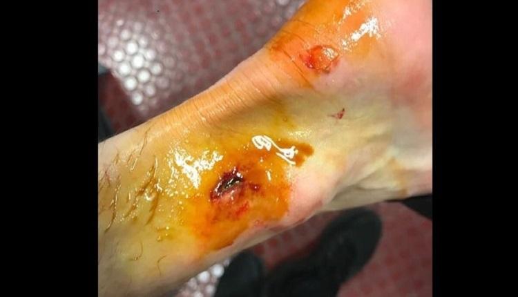 GS Haberleri - Linnes'in ayağı kanlar içinde! Derbi sonrası...