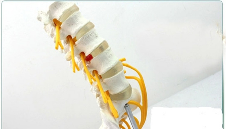 Omurga kırığı neden olur? (Omurganın kalçaya bağlayan kemiğinde kırık)