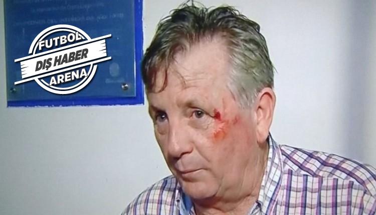 Maçı kaybettiler, başkanı dövdüler! Elmacık kemiği kırıldı