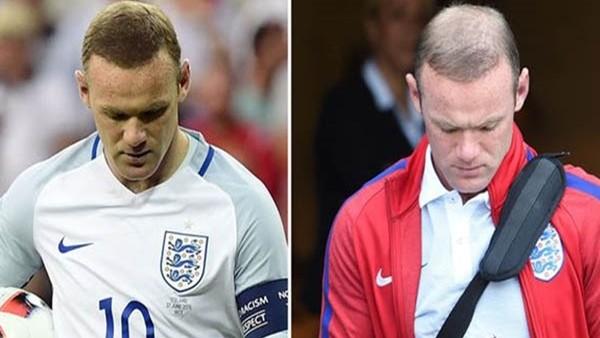 Wayne Rooney bir gecede kel kaldı!