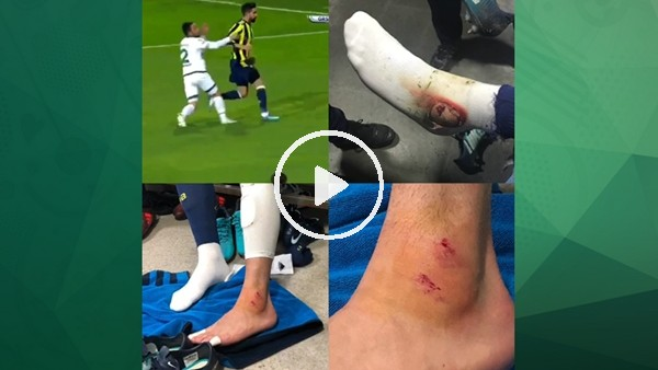 Giresunspor maçında sakatlanan Hasan Ali Kaldırım'ın bileği