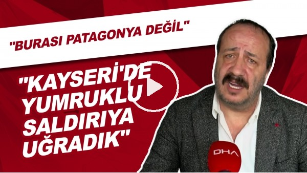 """'Beşiktaş Yönetisici Adnan Dalgakıran: """"Milletvekili Tarafından Yumruklu Saldırıya Uğradık"""""""